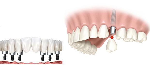 Envigado Oral