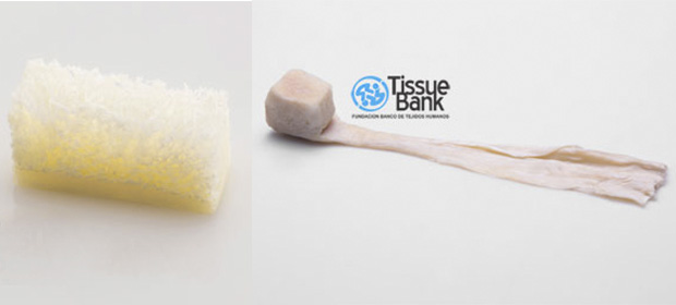Banco De Tejidos Humanos Tissue Bank