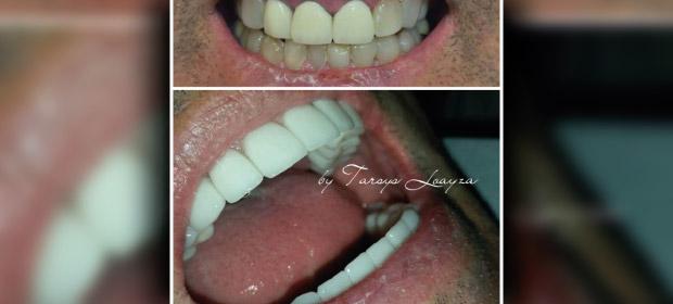 Sonrisa Perfecta Dental S.A.S. - Imagen 4 - Visitanos!