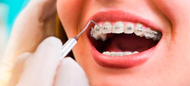 Ortodoncista Nora Madrigal
