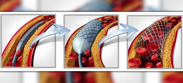 Dr.Felix Pitty / Dr.Carlos Alba Cardiovasculares Toracicos Y Asociados, S A - Imagen 3 - Visitanos!