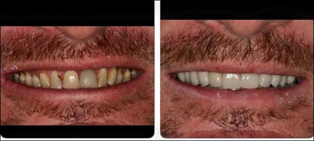 Dr. Luis Francisco Grisolia / Denti Vitale