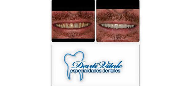 Dr. Luis Francisco Grisolia / Denti Vitale - Imagen 4 - Visitanos!