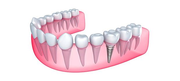 Clinica Dental Sonrie