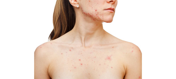 Alergia Clínica Inmunovida