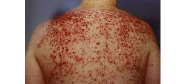 Centro Clínico Dermatológico