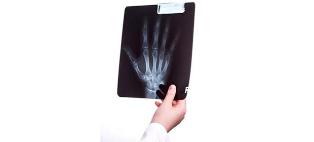 Radiology Solutions, S.A. - Imagen 5 - Visitanos!