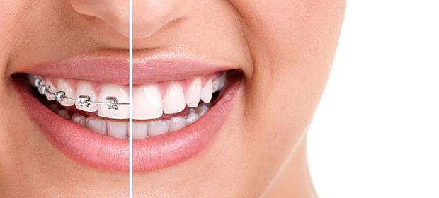 Clínicas Odontológicas Odonto Family